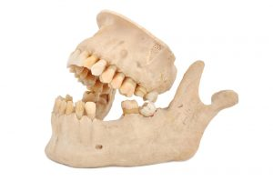 Tooth loss leads to jawbone loss. Grafting repairs the damage.