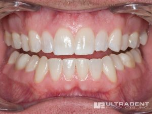 Boost tooth whitening effectively removes tooth stains.