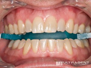 Boost tooth whitening is an in-office treatment system.