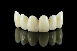 A dental bridge replaces a number of lost teeth and is available from the Placerville Dental Group.