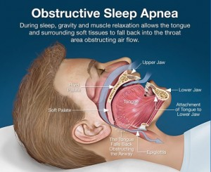 Sleep apnea is dangerous to your health. Our Placerville dentists can help.