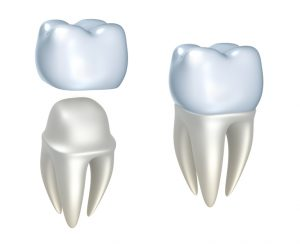 Crowns, inlays and overlays are provided by our Placerville dentists.