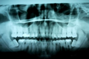 Wisdom Teeth X-ray, showing the danger of leaving impacted wisdom teeth in place.