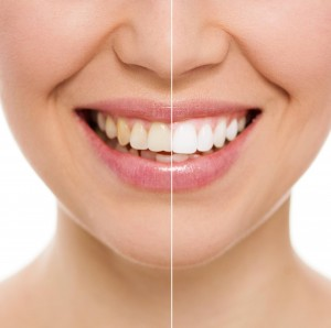 Tooth whitening using standard methods is effective and gradual when purchased from the Placerville Dental Group.