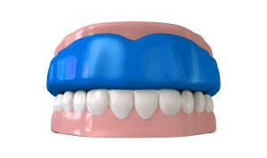 A customized mouthguard protects your teeth from outside forces and nightime or daytime teeth grinding.