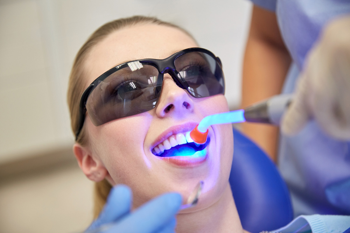 A UV light cures or hardens a dental resin applied during a tooth bonding procedure.