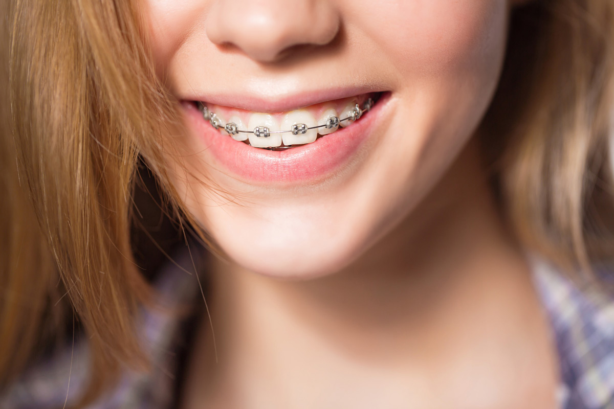Braces are sped up by Propel with our Placerville dentists.