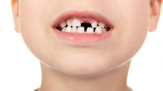 Jagged teeth are called mamelons and they do not require a visit to our Placerville dentists.