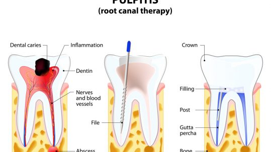 Our Placerville dentists perform root canals to save infected teeth.